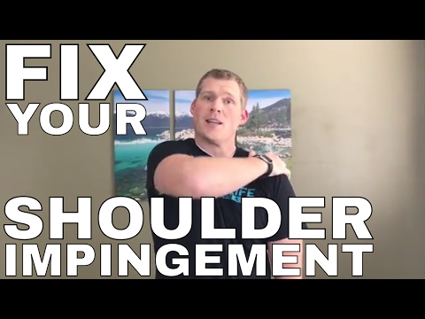 Shoulder Pain From Impingement: Top Exercises To Fix It