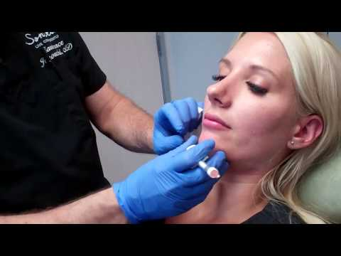 Filler to Define the Jawline and Correct a Recessed Jawline
